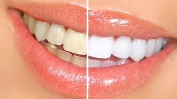 Cosmetic Smile Design
